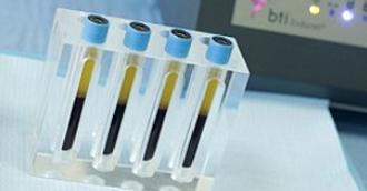 Технология Endoret (prgf)/ Эндорет – плазмотерапия с факторами роста. Разработка Института BTI.