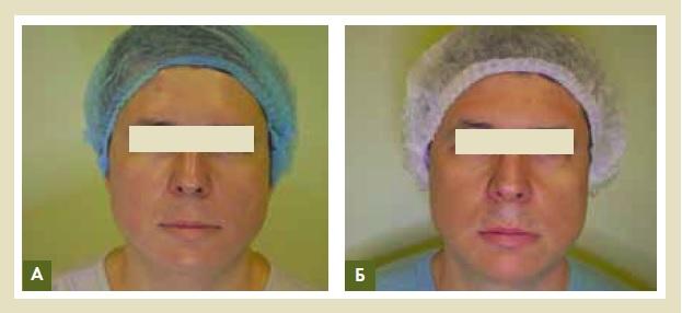Рис. 10. Пациент, 38 лет, первые признаки фотостарения, повышенная чувствительность кожи, проявляющаяся в виде раздражения и воспалительных элементов (А). Спустя 3 месяца с начала курса (Б). Было проведено 3 сеанса плазмотерапии с периодичностью 1 раз в 2 недели
