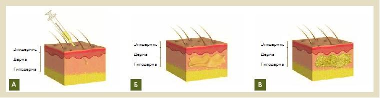 Рис. 7. А – Внутридермальное введение активированной жидкой композиции PRGF®- ENDORET®. Б – Все клеточные сигналы и биологически активные белки совместно стимулируют регенерацию кожи и синтез гиалуроновой кислоты. В – Формирование трехмерного фибринового сгустка увеличивает и поддерживает объем ткани