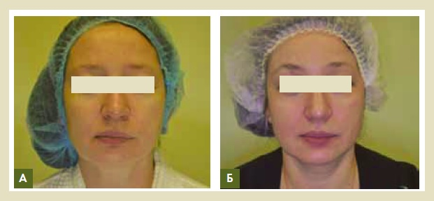 Рис. 9. Пациентка, 45 лет, сниженный тургор кожи, мимические морщины, ухудшение цвета лица (А). Спустя 1 месяц после проведения процедур (Б). Было проведено 2 сеанса плазмотерапии с периодичностью 1 раз в 2 недели