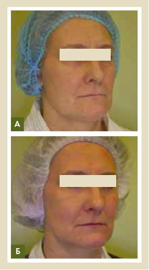 Рис. 8. Пациентка, 56 лет, усталый морфотип, выраженные морщины вокруг глаз, птозные изменения средней и нижней трети лица (А). Спустя 6 месяцев после проведения курсов процедур (Б). Было проведено 2 курса плазмотерапии Endoret по 3 сеанса на лицо, шею и декольте с периодичностью 1 раз в 2 недели