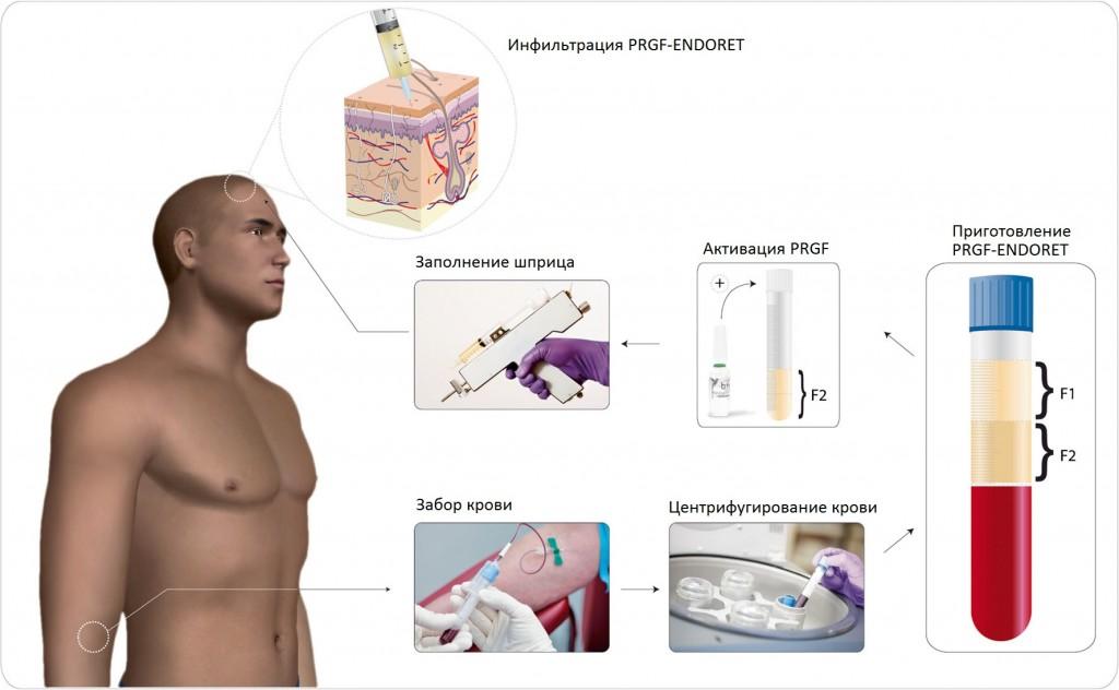 Протокол процедуры плазмотерапии Endoret PRGF (PRP-терапия, плазмолифтинг)