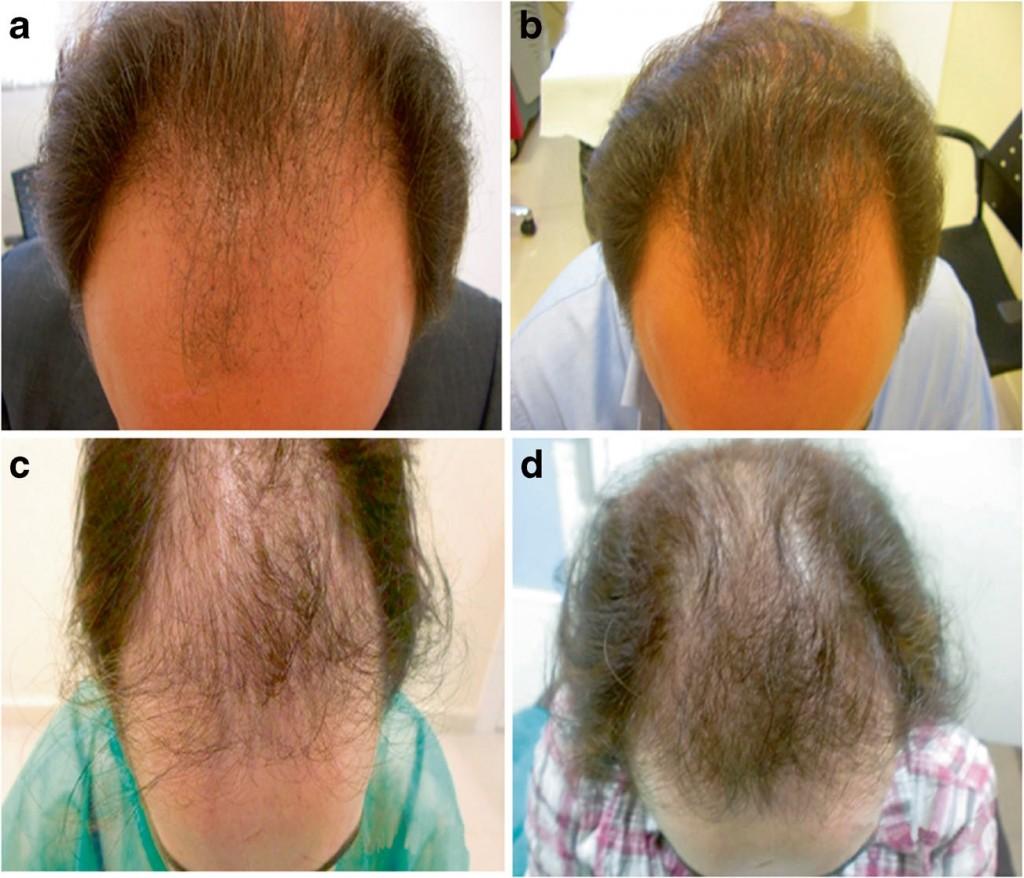 Результаты применения плазмотерапии ENDORET PRGF в лечении выпадения волос